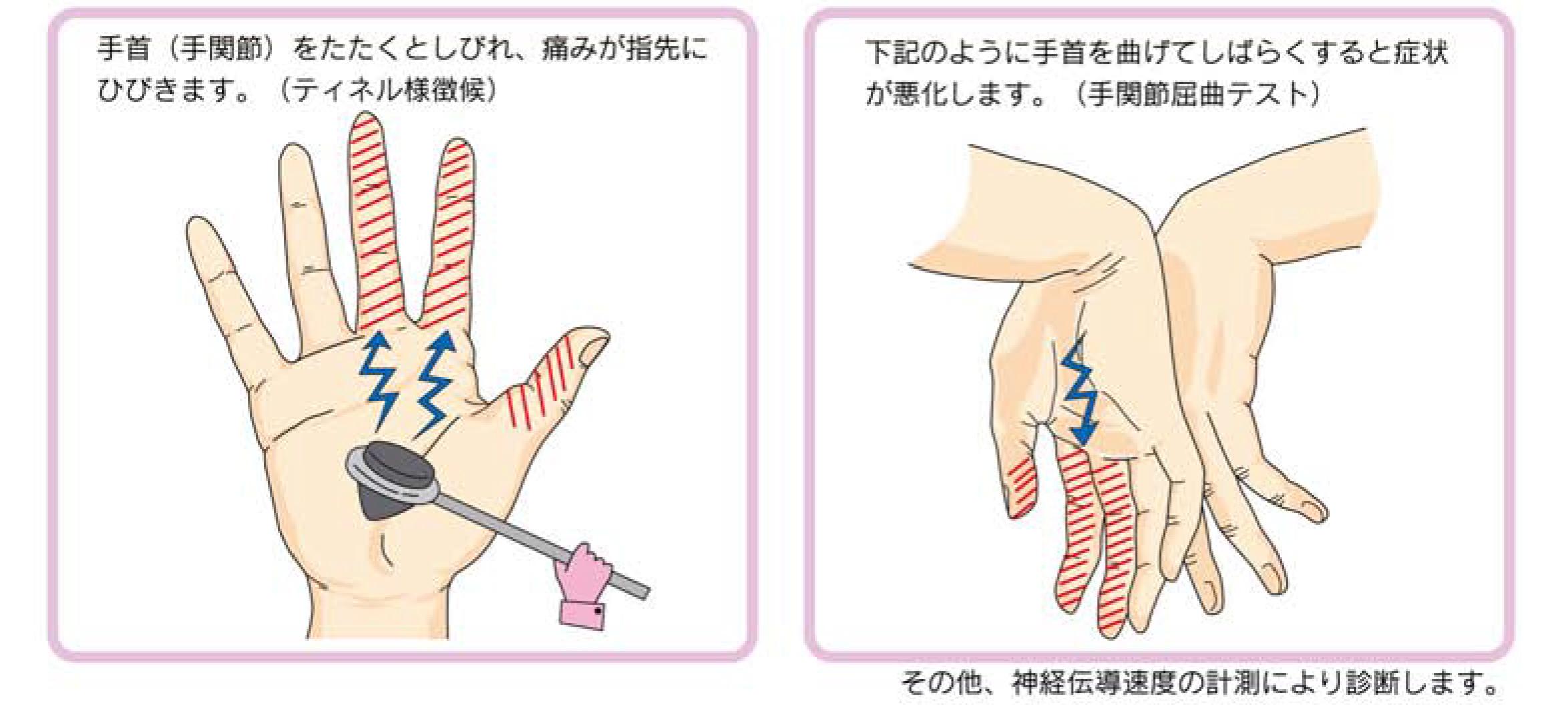 手 根 管 症候群 手根管症候群の症状・原因・治療方法